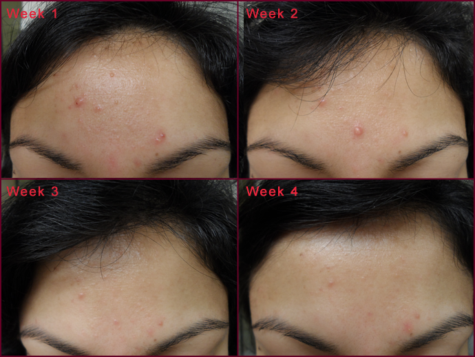... Acne Trial: Before & Afters » Blog Archive » amberlily naturals: amberlilynaturals.com/sandys-case-study-facial-acne-during-pregnancy